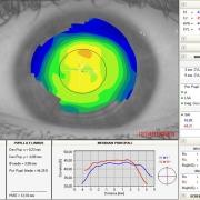 sala-refrazione-topografia-corneale-computerizzata-ottica-lariana-como-lazzago